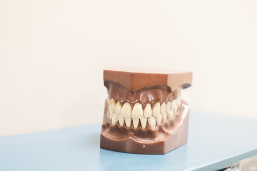 Implantati za boljši ugriz